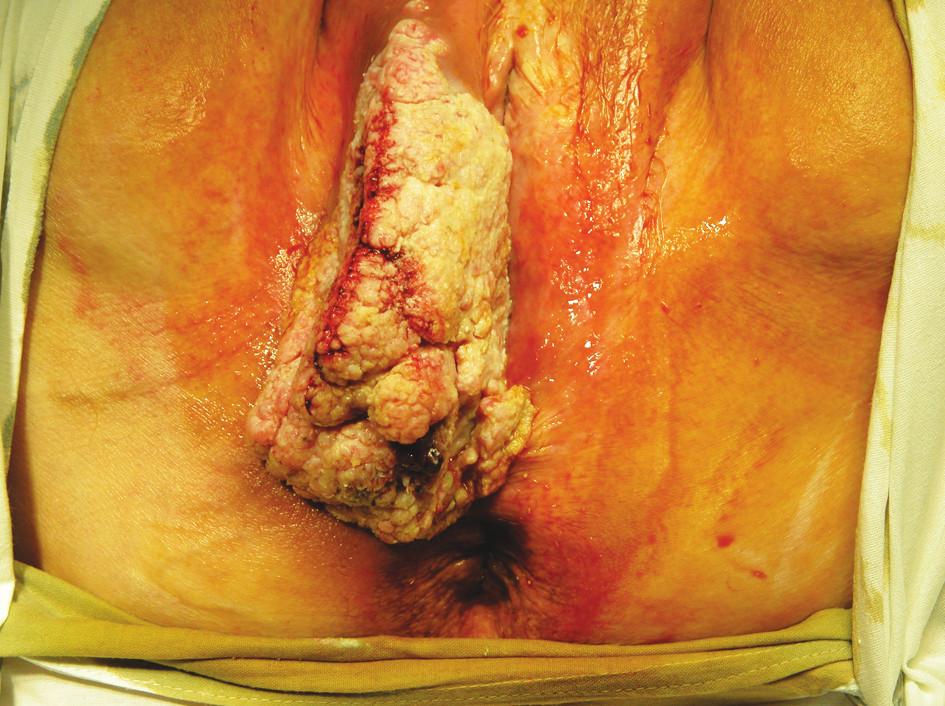 Fig. 1. Vulvar tumor