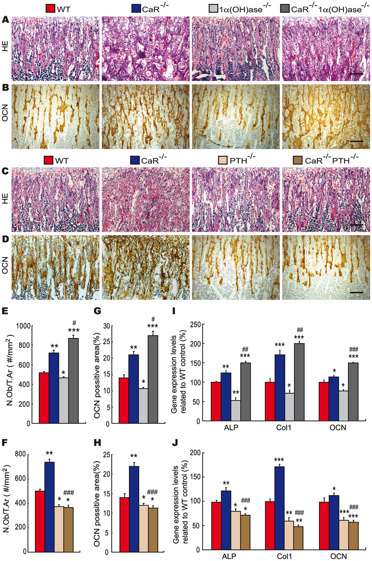 Effects of deletion of 1α(OH)ase or PTH on osteoblastic bone formation in CaR–deficient mice.
