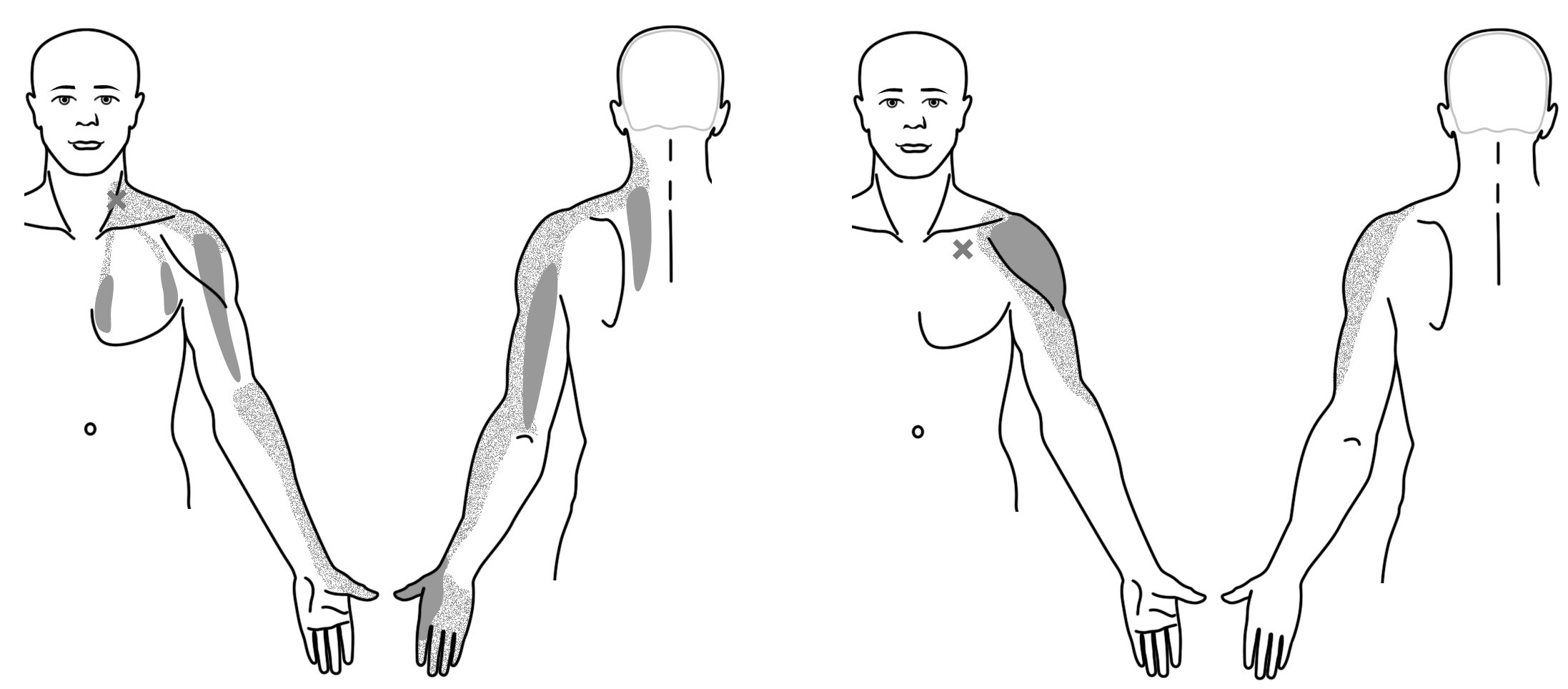 Trigger pointy v oblasti ramene a předloktí