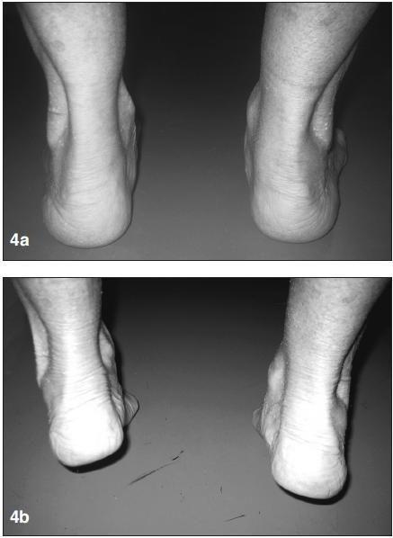 <strong>a)</strong> v zatížení patrná vpravo valgózní deviace paty a planovalgózní postavení nohy, <strong>b)</strong> při stoji na špičkách nedochází ke korekci valgózní deviace paty – známky dysfunkce šlachy m. tibialis posterior.