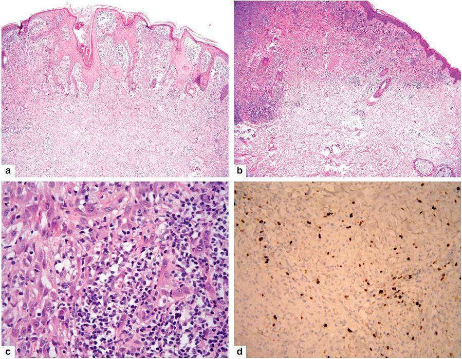 Spitzoidní melanom a – verukózní tumor s nepravidelně hyperplastickou epidermis b – dosti husté infiltráty lymfocytů v něm c – v nich jsou melanocyty s hyperchromními jádry a prominujícími jadérky d – tyto vykazují vysokou proliferační aktivitu i v dolní části léze (Ki-67)