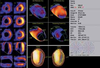 Funkční parametry po zátěži a v klidu. Na horních obrázcích rozsáhlá porucha perfuze v enddiastole a v end systole. Uprostřed porucha kinetiky a porucha systolického ztlušťování na přední stěně.