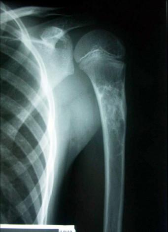 Obr. 1d: Po opakované instilaci depotního kortikoidu do perzistující juvenilní kostní cysty je patrné její zhojení (odstup od předchozího rentgenového snímku je 8 měsíců)