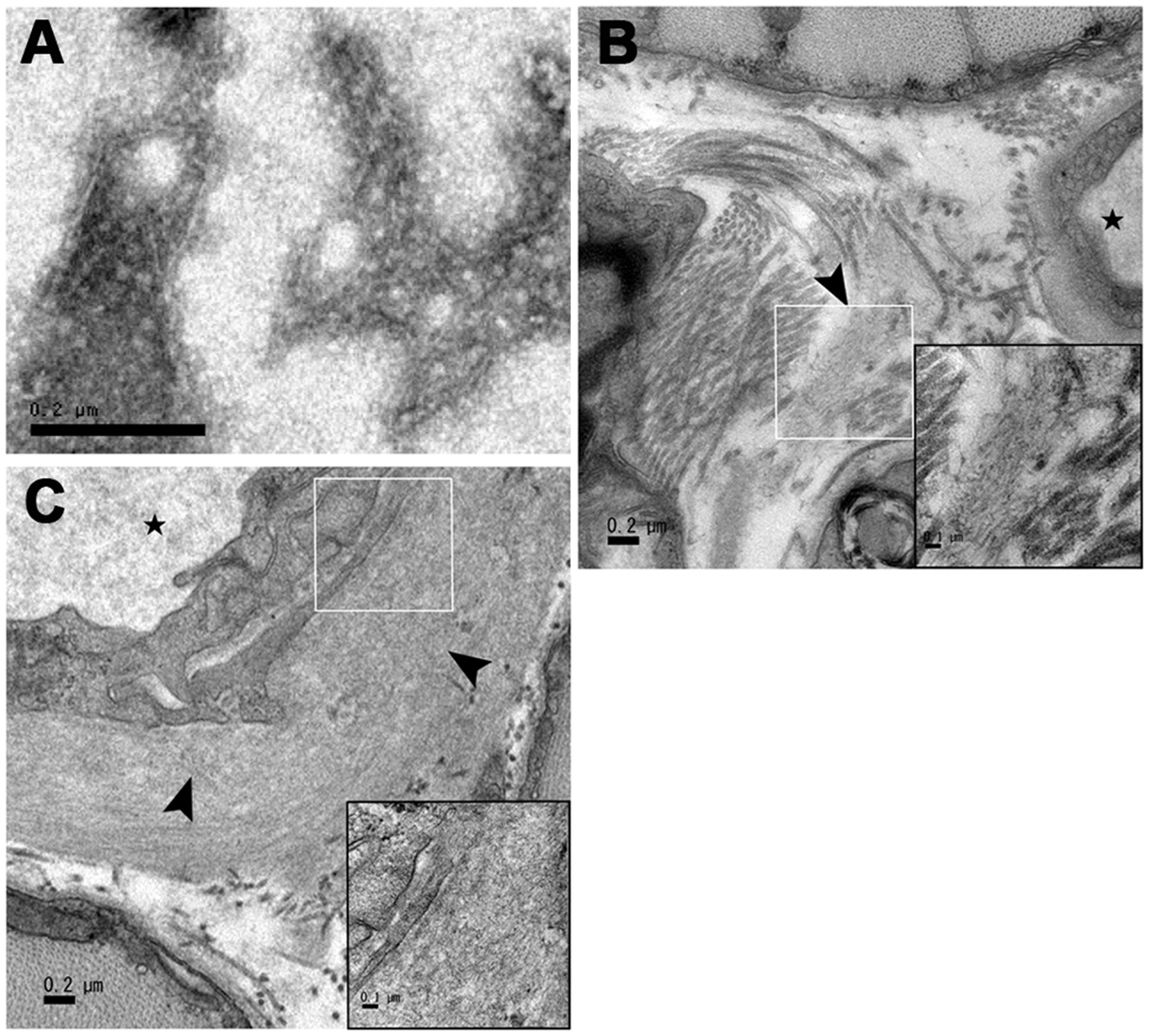 Transmission electron microscopy images of amyloid fibrils deposited in muscles.