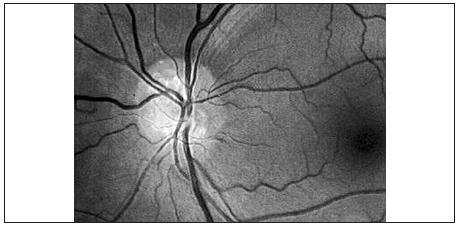 Povrchovo lokalizované drúzy zrakového nervu ľavého oka, dobre viditeľné na red free fotografii