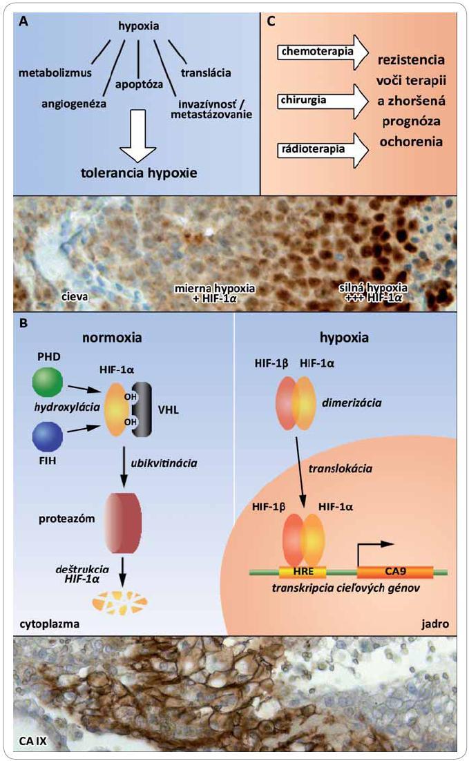 <i>Obr. 1A. Molekulárne mechanizmy vedúce k hypoxickej tolerancii.</i> <i>1B. Regulácia stabilizácie a transaktivácie transkripčného faktora HIF-1 v závislosti od kyslíka.</i> V normoxických podmienkach dochádza k hydroxylácii podjednotky HIF-1α prostredníctvom prolyl hydroxyláz (PHD) a asparaginyl hydroxyláz (FIH). Hydroxylované prolíny sú rozpoznávané nádorovým supresorovým proteínom von Hippel-Lindau (VHL). Po ubikvitinácii je podjednotka HIF-1α degradovaná v proteazóme. V hypoxických podmienkach nedochádza k hydroxylácii HIF-1α a následne ani k VHL-sprostredkovanej degradácii, čoho výsledkom je stabilizácia a dimerizácia s podjednotkou HIF-1β. Po translokácii do jadra a rozpoznaní hypoxického-responzívneho elementu (HRE) je aktivovaná transkripcia hypoxiou regulovaných génov napr. karbonickej anhydrázy 9 (<i>CA9</i>). <i>1C. Rezistencia hypoxických nádorov voči terapii a jej klinický význam.</i>
