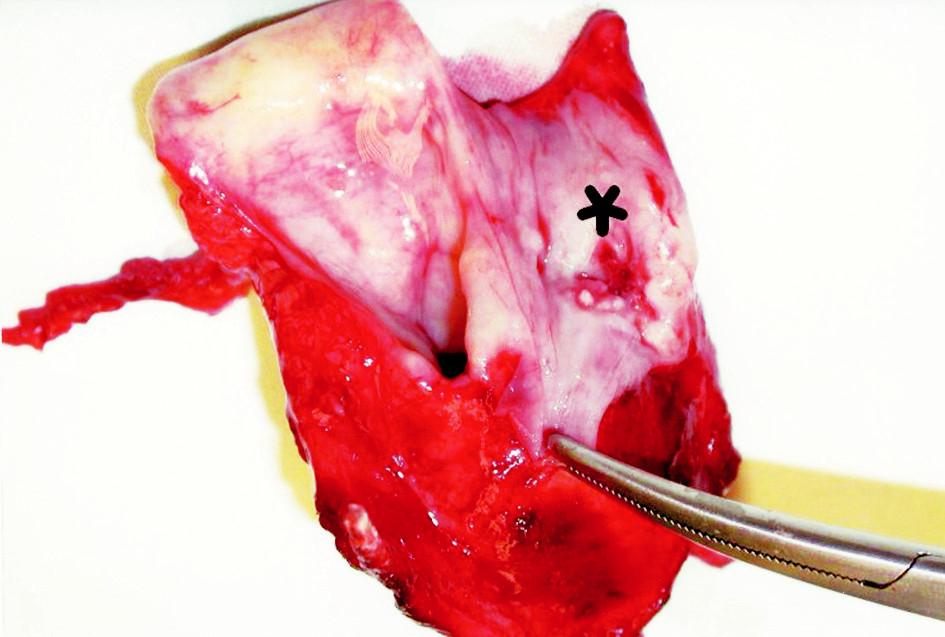 Resekce laryngu spolu s karcinomem pravého piriformního sinusu s defektem na jeho povrchu. Odstraněn v rámci TLE a parciální PHE.