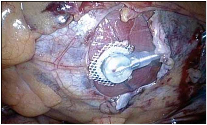 Torakoskopicky implantovaná ľavokomorová epikardiálna elektróda.