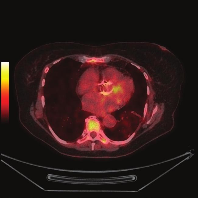 FDG PET/CT z 10.9.2012 1a - předozadní maximum intensity projection (MIP) 1b - PET s korekcí na atenuaci, axiální řez srdcem v úrovni aortálního anulu, je patrná diskrétně zvýšená akumulace FDG při aortálním anulu (šipka) 1c - PET bez korekce na atenuaci, ve stejné rovině jako 1b 1d - fúze PET/CT, ve stejné rovině jako 1b