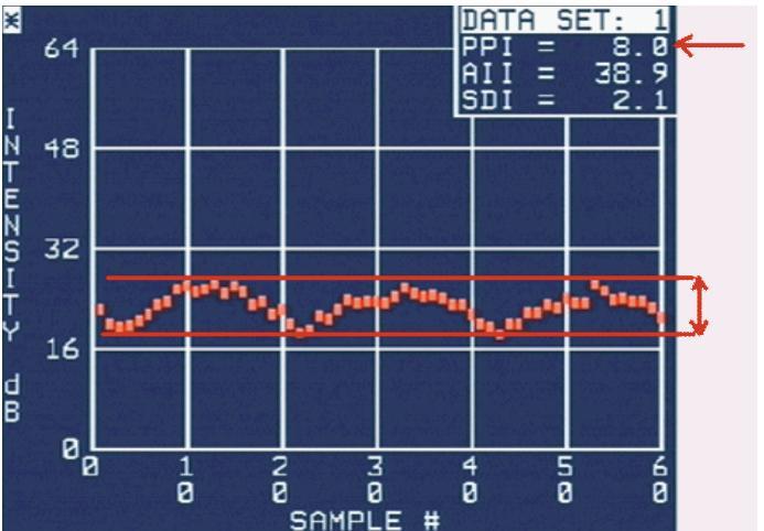 Ukázka křivky kolísání IBS a měření amplitudy CVIB.