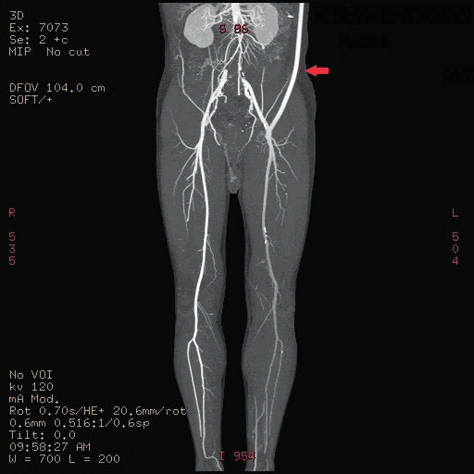 CT angiography showing functional left-sided axillofemoral bypass (arrow)