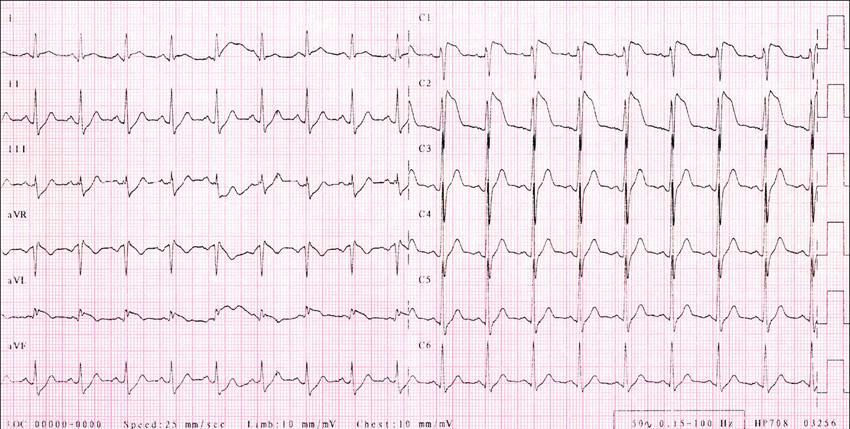 RK, 29 let, Brugada syndrom. EKG s vysoko odstupujícími konkávními elevacemi ST segmentu (J vlna) ve V1,2.