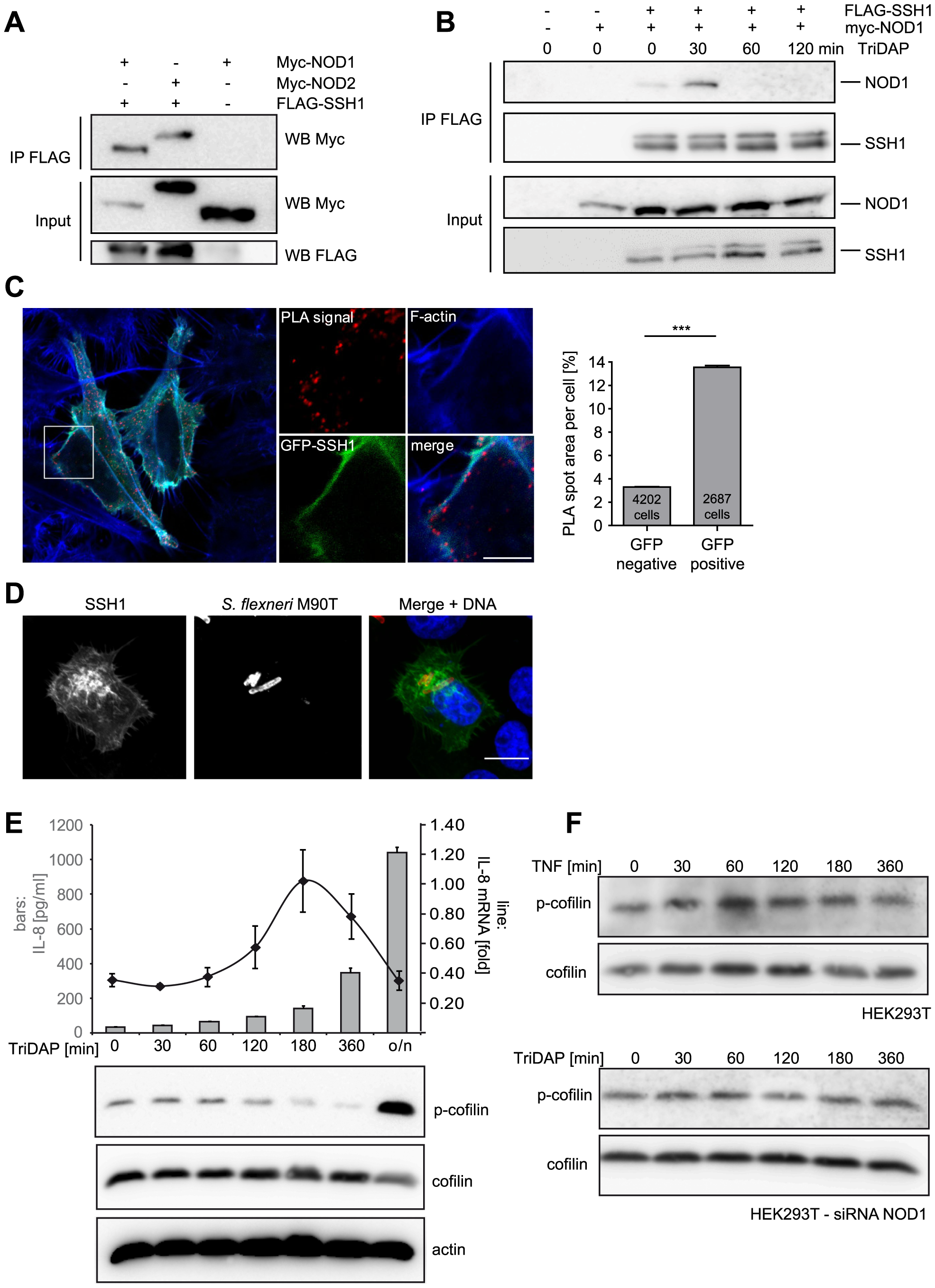 SSH1 interacts with NOD1 and regulates cofilin phosphorylation after NOD1 activation.
