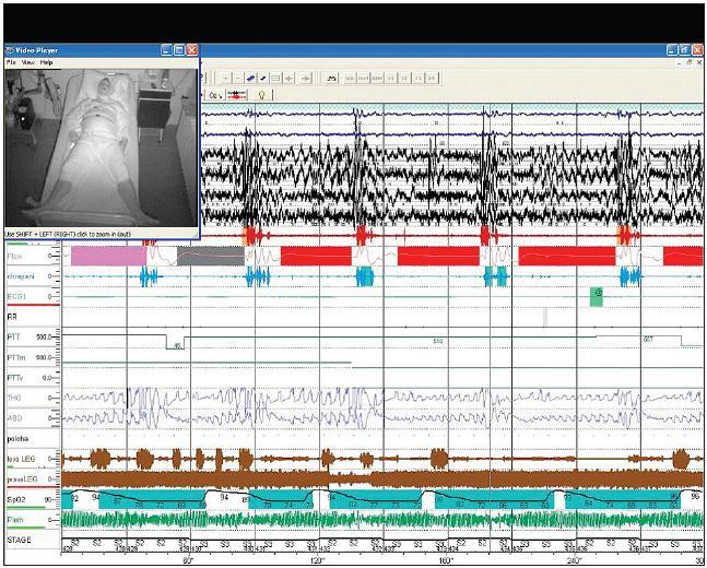 Pětiminutová část záznamu videopolysomnografie – v levém rohu záznamu je na obrazovce pacient, který je snímán kamerou v infračerveném světle. První dva řádky jsou záznam EOG, níže pak záznam EEG (zvýrazněné červené čáry značí mikroprobuzení). Následuje řádek průtoku vzduchu (flow) s patrnými zástavami dechu – apnoickými pauzami (červeně značené obdélníky). Mezi apnoickými pauzami je modře značeno chrápání. V dolní části záznamu je modrozeleně zvýrazněn pokles saturace krve kyslíkem – patrný pokles až na 62 % SaO<sub>2</sub>.