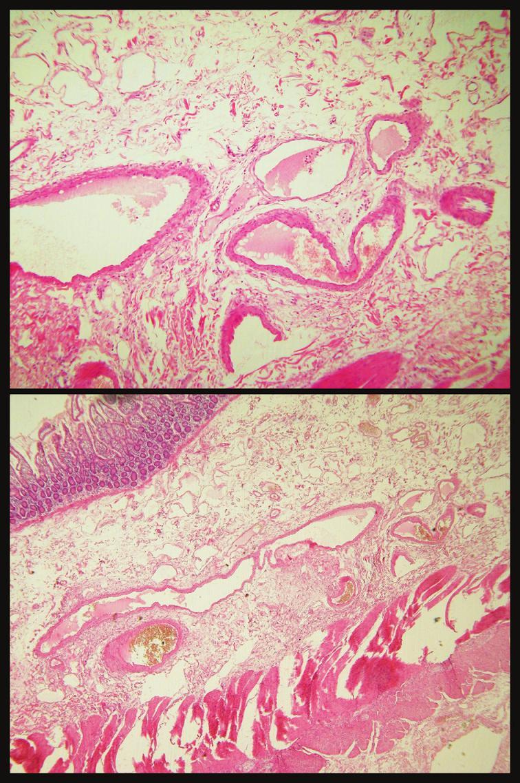 Histologický obraz angiodysplázie Fig. 3. Histological view of angiodysplasia