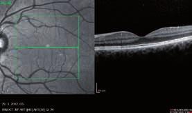 Obr. 3 a 4. Obraz OCT na pravom a ľavom oku v 1. trimestri, všetky vrstvy sietnice zachované, bez prítomnosti edému