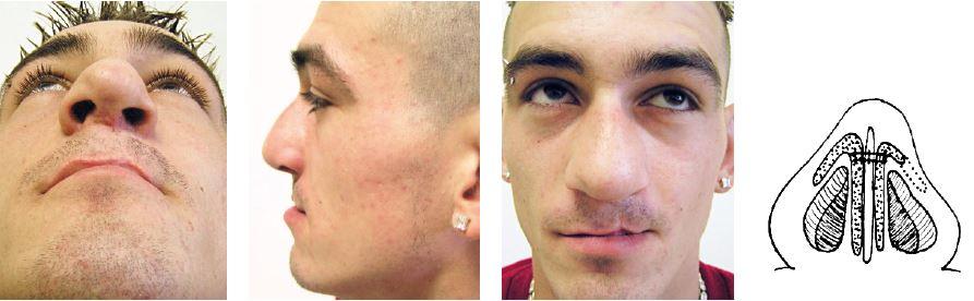 Pacient z obr. 22 po korekcii vonkajšieho nosa uvedenou technikou. Asymetria dômov pretrvává, ale je menej vyznačená. Zmenšil sa profil, zväčšil nazolabiálny uhol, hrb je menej nápadný, nos je hrubý, ale celkovo rovný.