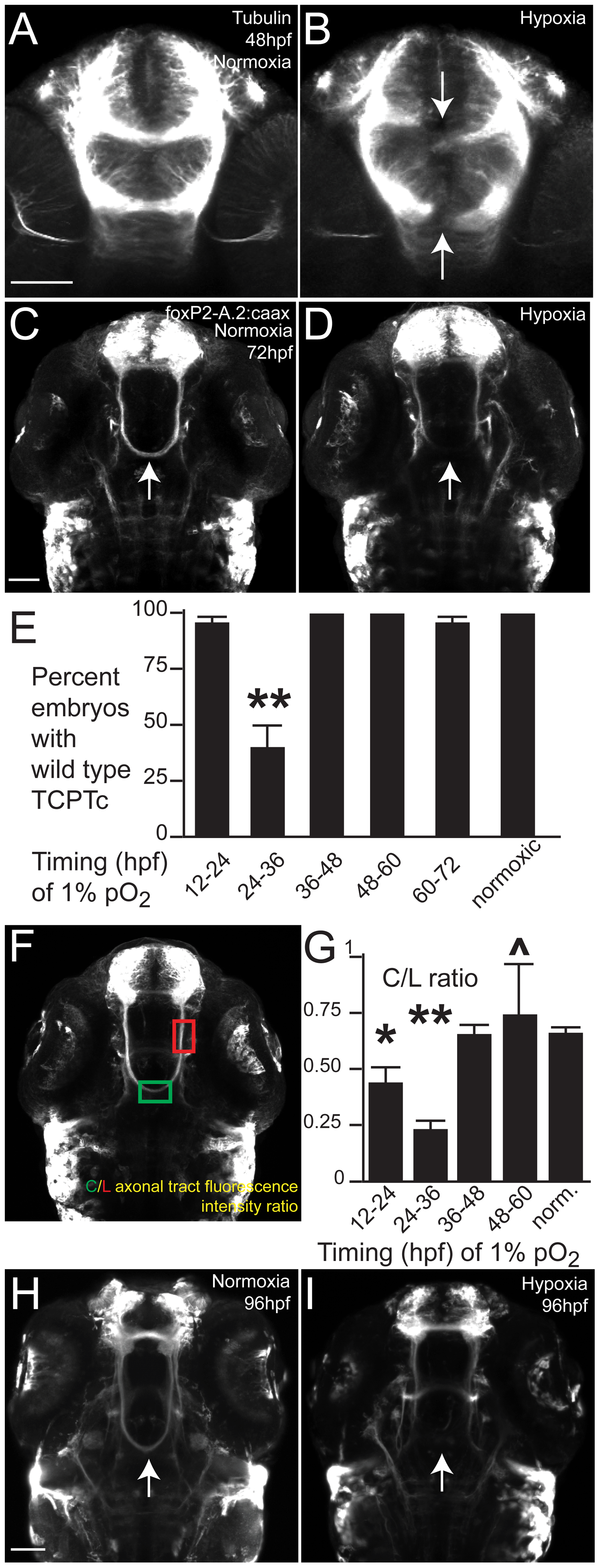 Hypoxia disrupts axon pathfinding in the developing CNS.