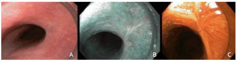A – zhojená jazva po EMR, B – zobrazenie v NBI, C – farbenie Lugolovym roztokom. Fig. 5. A – resection scar with white light endocopy, B – narrow band imaging, C – Lugolʹs staining.