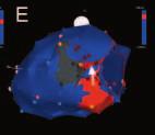 Rozfázovaná elektroanatomická propagační mapa (panely A–E) levé komory srdeční (pohled zezadu z laterální strany) získané mapováním při komorové tachykardii reentry typu u nemocného po laterálním infarktu myokardu.