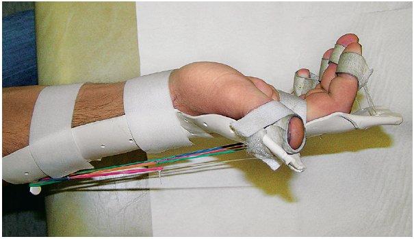 Dynamická dlaha umožňující časnou rehabilitaci po sutuře extenzorových šlach. Umožňuje aktivní flexi prstů, zpětnému pohybu do extenze pomáhají gumičky, čímž dochází k odlehčení sešitých extenzorových šlach.