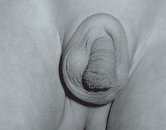 Neúplná penoskrotální transpozice, nazývaná též šálové skrotum. Penis je uložen částečně uvnitř šourku.