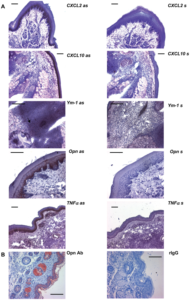 <i>In-situ</i>-hybridization and immunohistochemistry.