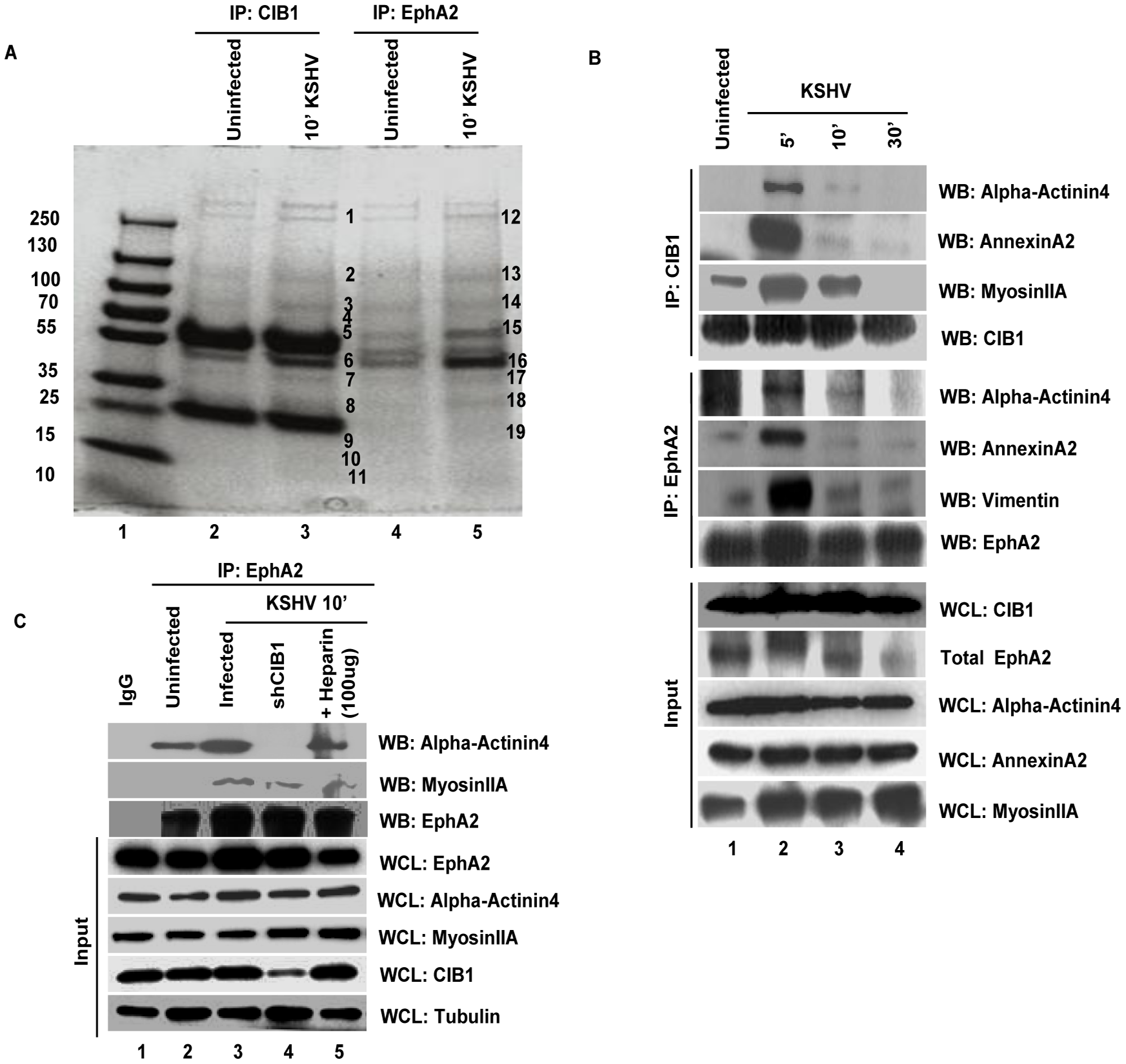 Mass spectrometric analysis of immunoprecipitates of anti-CIB1 and EphA2 antibodies with lysates from KSHV infected HMVEC-d cells.