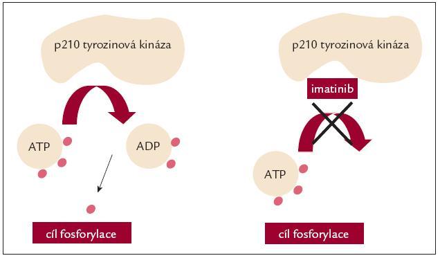 Imatinib blokuje vazbu ATP k abl tyrozinové kináze.