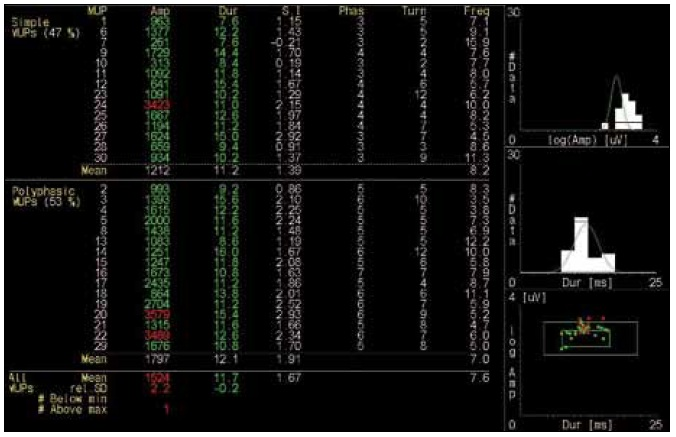 Numerické parametry jednotlivých MUP s výpočtem průměrné hodnoty celého vzorku (abnormální hodnoty červeně), vpravo histogramy logaritmu amplitudy, trvání a bodový graf logaritmu amplitudy a trvání (zelené křivky znázorňují rozsah normálních hodnot, větší zelené obdélníky normativní hodnoty jednotlivých MUP, menší obdélníky normativní průměrnou hodnotu vzorku).