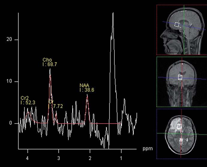 MR spektroskopie mozkového abscesu – patrná výrazná elevace laktátu v oblasti zájmu, nízká hladina NAA a lehce vyšší pík cholinu při zachycení i okolní mozkové tkáně (1,5T, SVS, TE 135 ms). Fig. 3. MR spectroscopy of brain abscess – demonstrates signifi cant elevation of lactate in the area of interest, low levels of NAA and choline peak slightly higher when capturing surrounding brain tissue (1.5T, SVS, TE of 135 ms).
