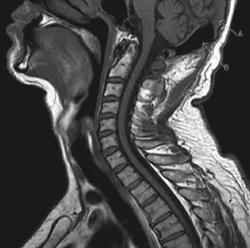 MR vyšetření, T1 sagitální sekvence krční páteře, šipka A označuje přítomnost intenzit tekutiny v diploe okcipitální kosti, šipka B podíl vzduchu. Rovněž je zde dobře patrné expanzivní chování.