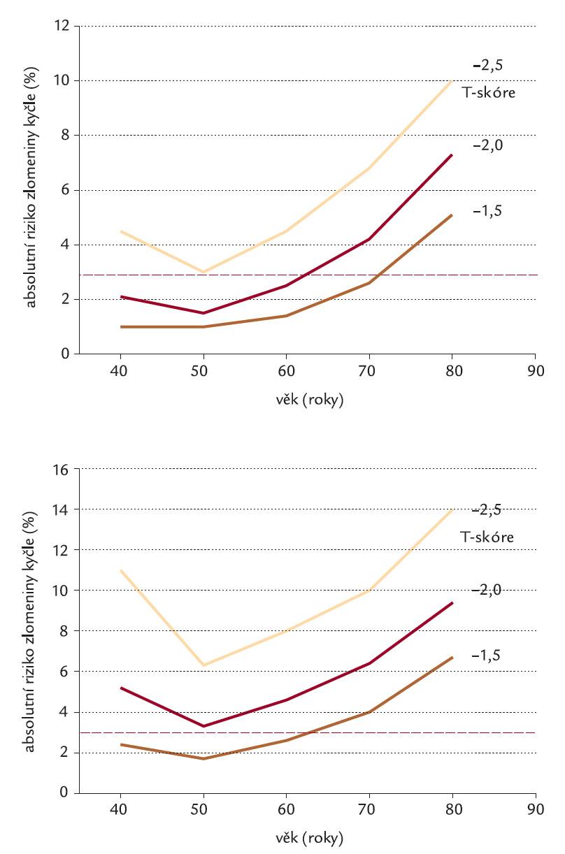 Nahoře: U paci entů léčených glukokortiko idy, ale bez prodělané zlomeniny je 3% riziko, že prodělají zlomeninu kyčle během dalších 10 let při BMD proximálního femoru ≤ – 2,5 T- skóre. Dole: U paci entů léčených glukokortiko idy, kteří během této léčby prodělali nízkotra umaticko u zlomeninu, je 3% riziko, že prodělají zlomeninu kyčle během dalších 10 let při BMD proximálního femoru ≤ – 2,0 T- skóre. Pro výpočet užito algoritmu FRAX [10].