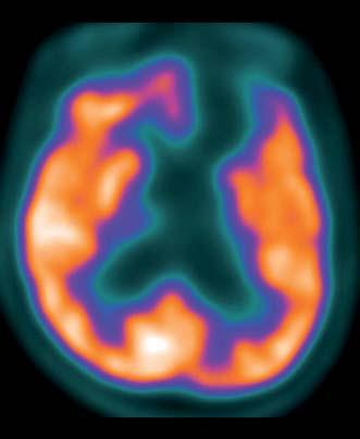 Subtrakční zobrazení FDG PET/CT po podání zolpidemu. Fig. 2. Subtraction FDG PET CT scan following zolpidem administration.