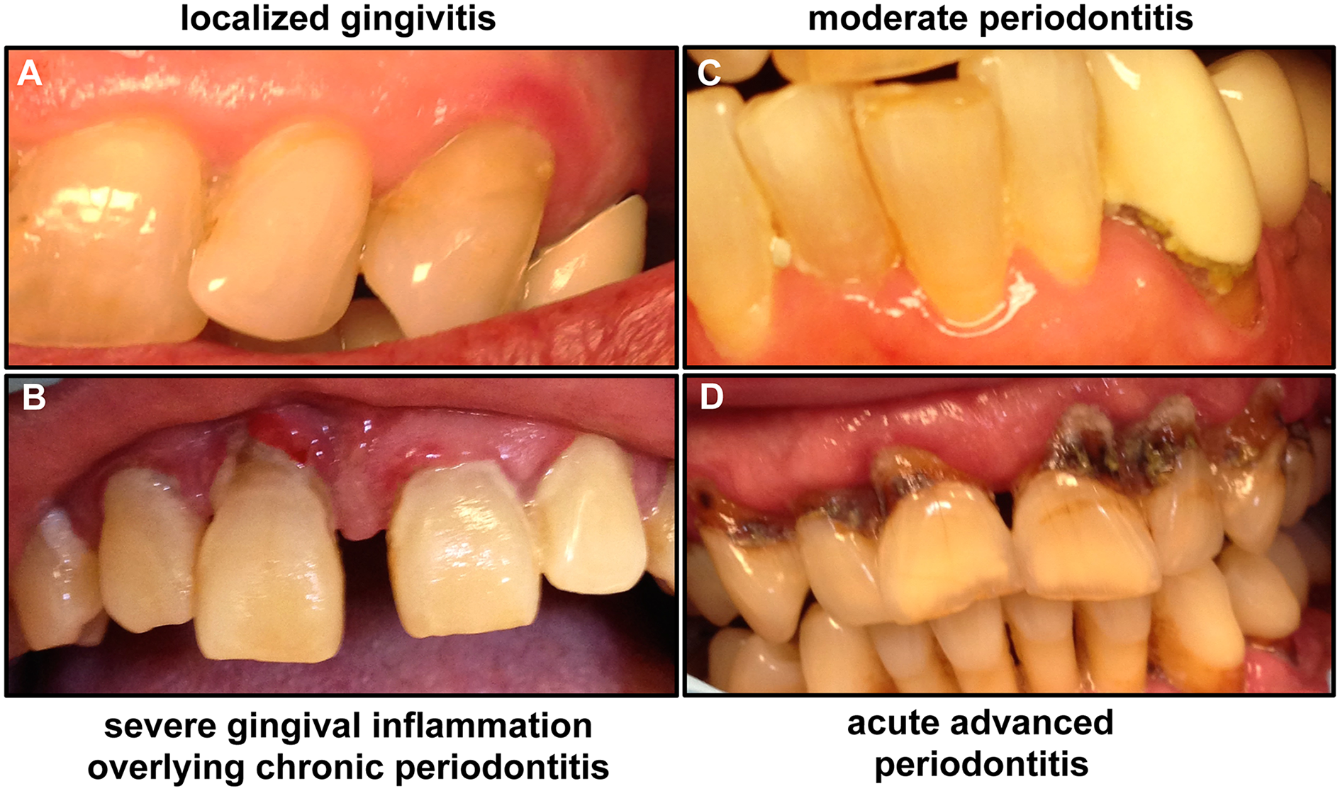 Images of patients demonstrating the clinical progression of periodontal disease from gingivitis to advanced periodontitis.