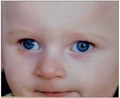 Typický fenotyp dítěte s Angelmanovým syndromem (detail obličeje) (publikováno se svolením rodičů dítěte, fotoarchiv OLG Ostrava)