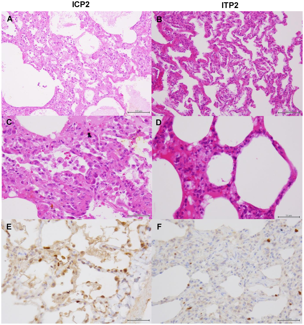 Histological analysis of pneumonia and distribution of viral antigens in immunosuppressed and peramivir-treated macaques infected with VN3040.