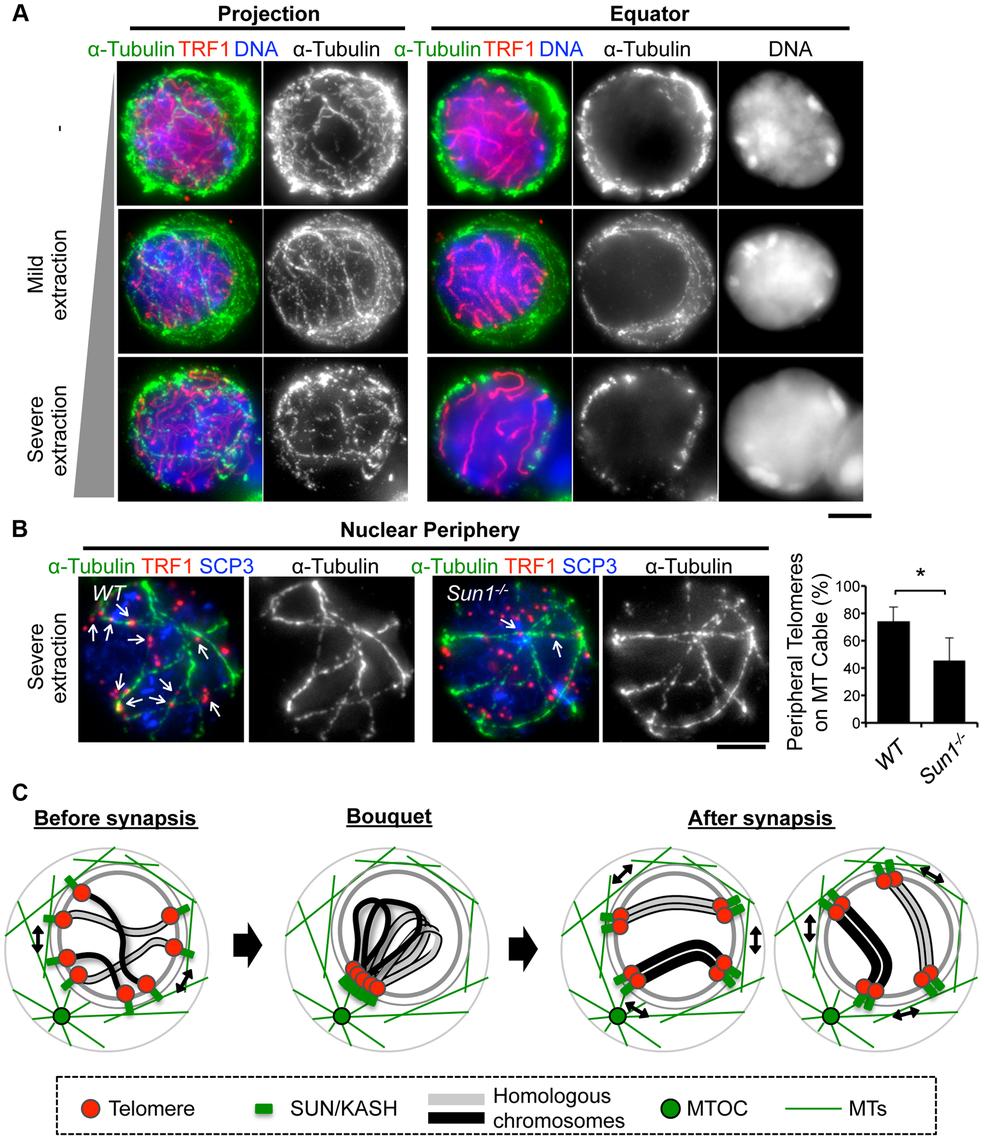 MTs dynamics in spermatocytes.
