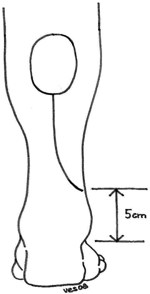 Nákres 1: Nákres distálně stopkovaného suralis laloku na zadní straně bérce Scheme 1. The schema of a distal pedicle flap on the posterior part of the cruris
