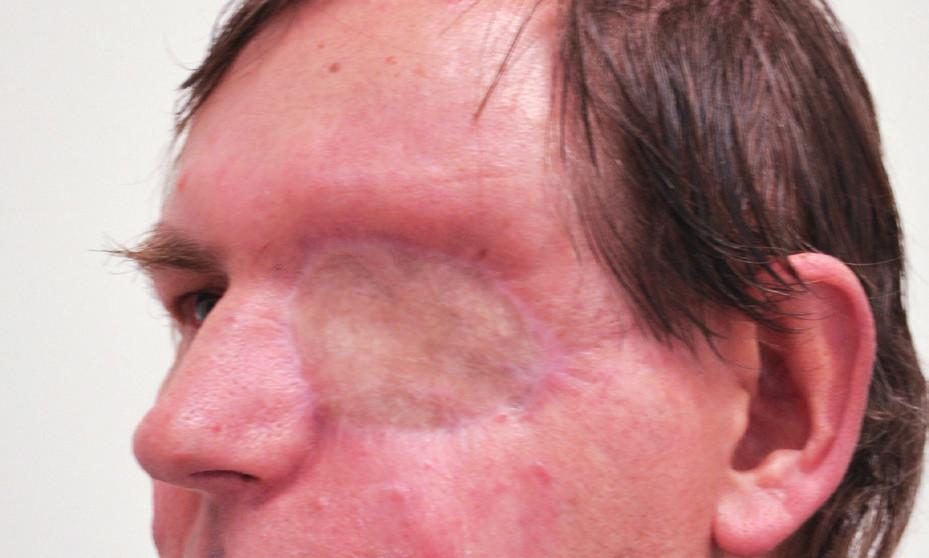 Pacient po exenteraci očnice, defekt kryt plastikou lalokem.