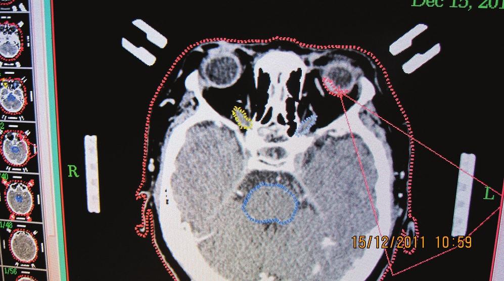 CT obraz pacientky s naloženým stereotaktickým kruhom - nádorové ložisko označené červenou farbou