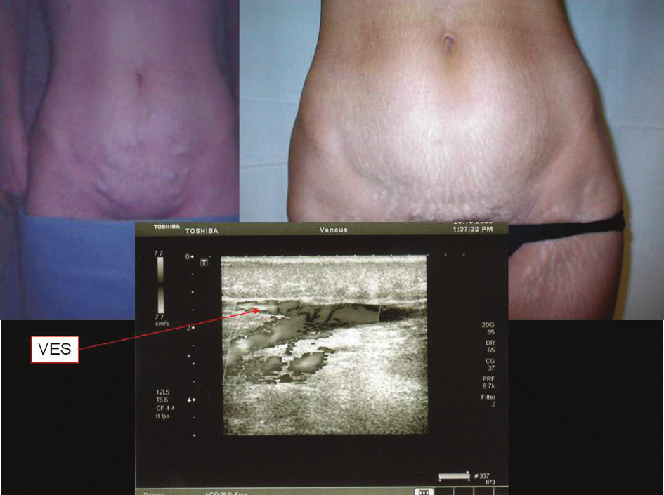 Recidiva varikozit z ponechané VES Fig. 1. Relapses of varicosities of the retained VES