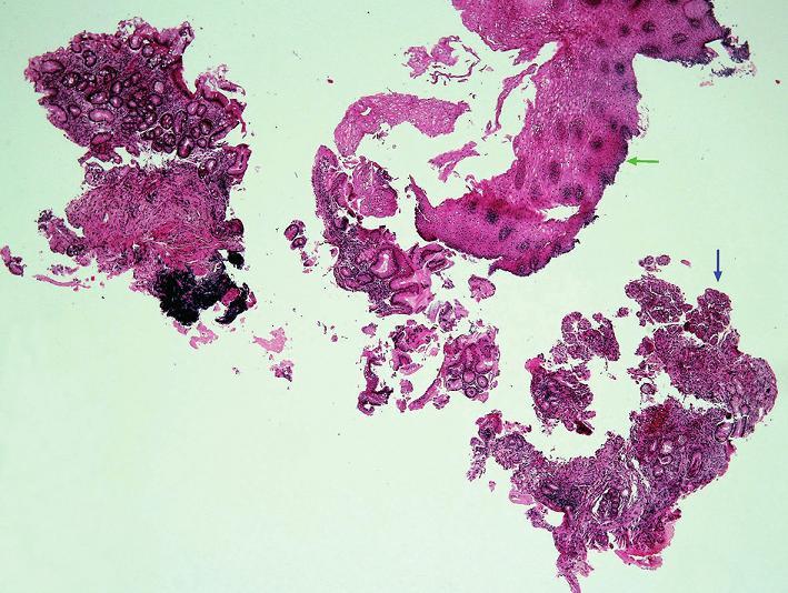 Přehledný obraz morfologických změn při refluxní ezofagitidě.