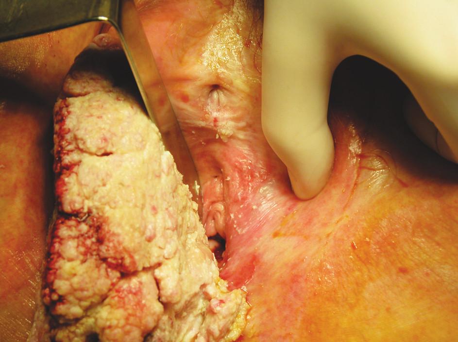 Fig. 2. Detail of vulvar tumor localization