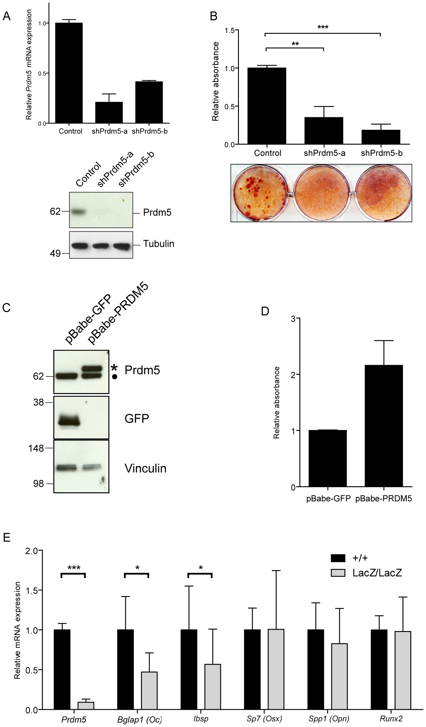 Prdm5 deregulation impairs osteogenic differentiation <i>in vitro</i>.