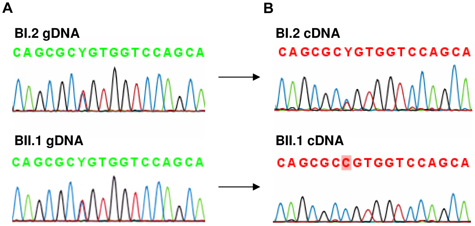 Analysis of rs4851214 which maps to coding exon 14 of <i>AFF3</i> using paired genomic DNA and cDNA templates from the unaffected carrier mother BI.2 and the affected carrier son BII.1 from family B.