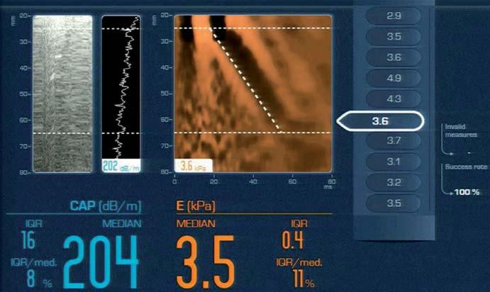 Fibroscan<sup>®</sup> – záznam vyšetření dle [7]. Fig. 1. Fibroscan<sup>®</sup> – an examination record according to [7].