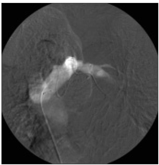 Venografie v. brachiocephalica sin. a jejích větví (v. subclavia sin. a v. jugularis int. sin.) s nálezem zcela extravazálního uložení zauzlené elektrody v horním mediastinu.