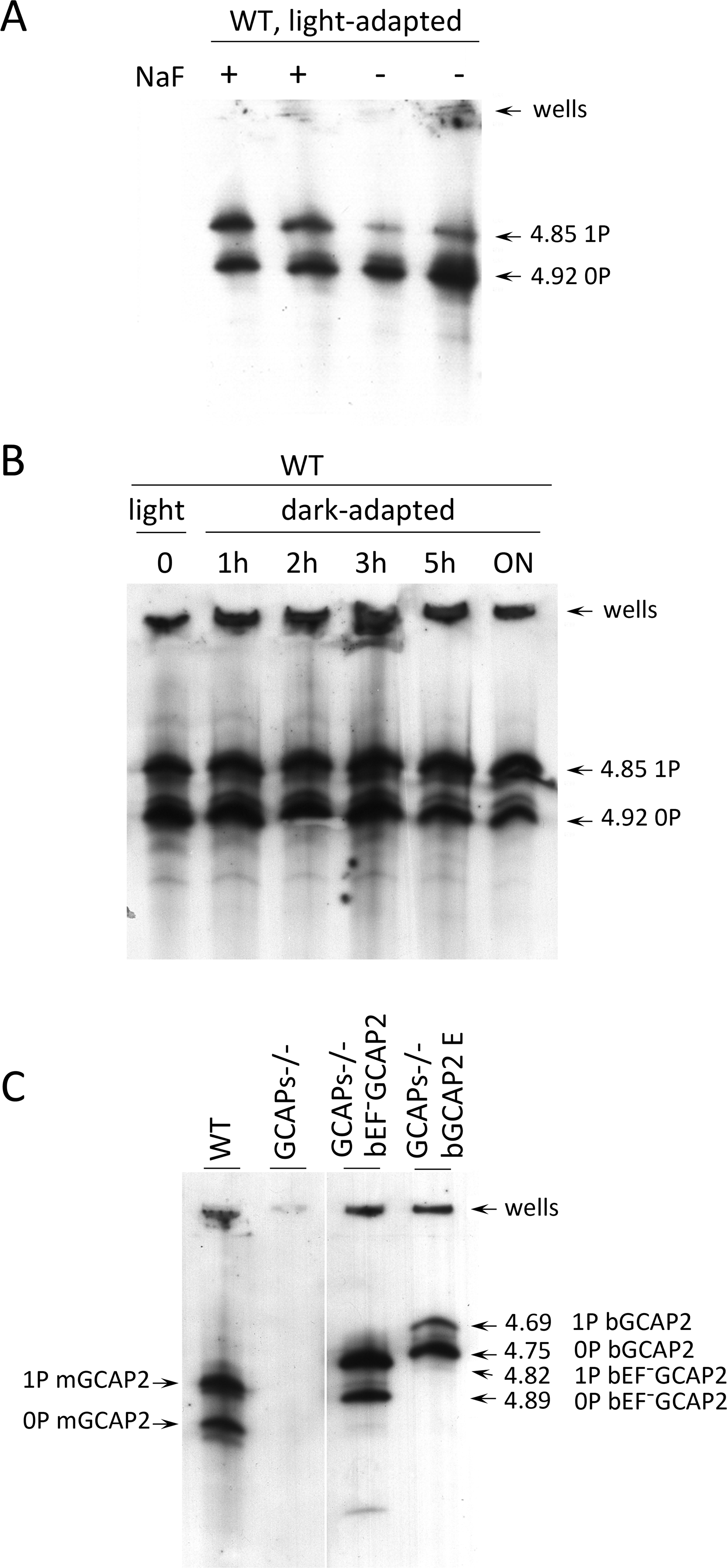 Analysis of GCAP2 phosphorylation by isoelectrofocusing.