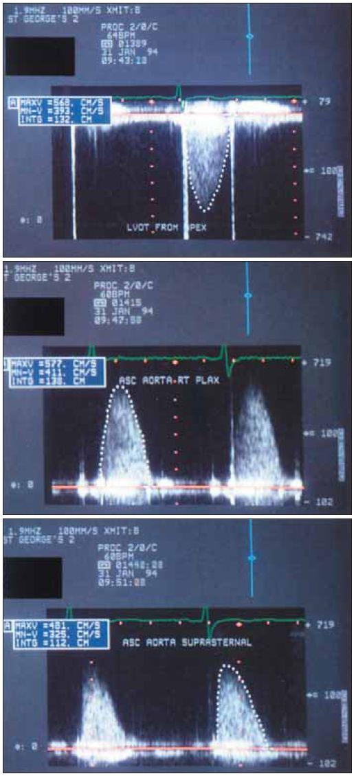 Záznam kontinuálním spektrálním dopplerovským vyšetřením z hrotu (nahoře), pravého horního parasternálního okraje (uprostřed) a suprasternálně (dole) u mladého muže s hlasitým systolickým šelestem. Vrcholový gradient je vyšší než 130 mmHg, se stejnými hodnotami z hrotu a pravé parasternální hrany. To dokládá, že oba směry paprsku jsou v podstatě sdružené, a potvrzuje technickou správnost záznamu.